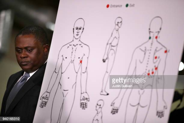 Dr. Bennet Omalu stands by a diagram showing the results of his autopsy of Stephon Clark during a news conference at the Southside Christian Center...