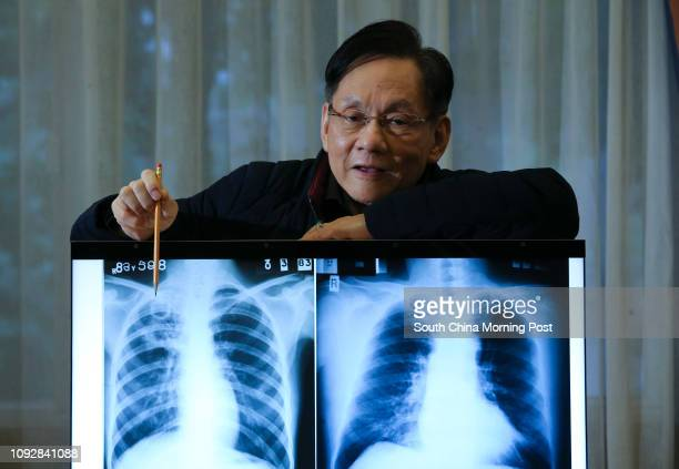Dr Chan Shiulun Honorary Consultant Hong Kong Tuberculosis Chest and Heart Diseases Association shows an xray of a patent with extensive Tuberculosis...