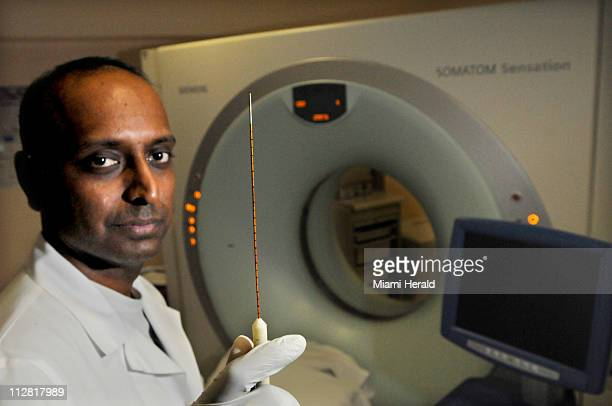 Dr Govindarajan Narayanan chief of vascular interventional radiology at the University of Miami Miller School of Medicine pictured January 14 used a...
