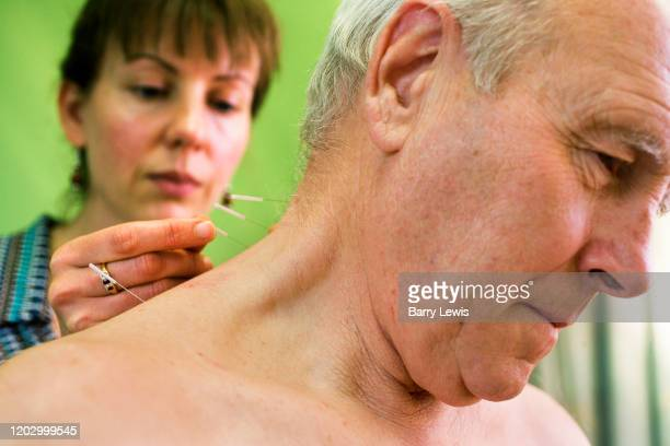 Dr Hass performing accupuncture on a man at the London Homeopathic Hospital on 11th December 2006 in London United Kingdom The patient had severe...