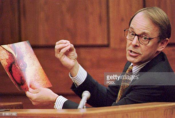 Dr James T Sehn holds a photo of the severed penis of John Wayne Bobbitt during the second day of the trial of Lorena Bobbitt in the Prince William...
