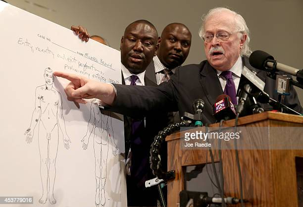 Dr Michael Baden points to an autopsy diagram showing where the gun shots hit Michael Brown as family attorney's Benjamin Crump and Daryl Parks look...