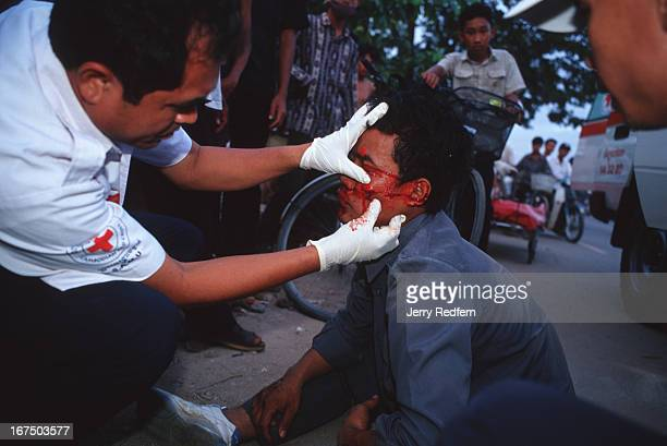 Dr Svay Kamol head of SAMU examines the bloody wound of a man who was hit by a passing car while riding a bicycle The man a worker for the Camintel...