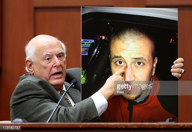 Dr Vincent DiMaio a forensic pathologist and gunshot wound expert describes the injuries of George Zimmerman while testifying for the defense in the...