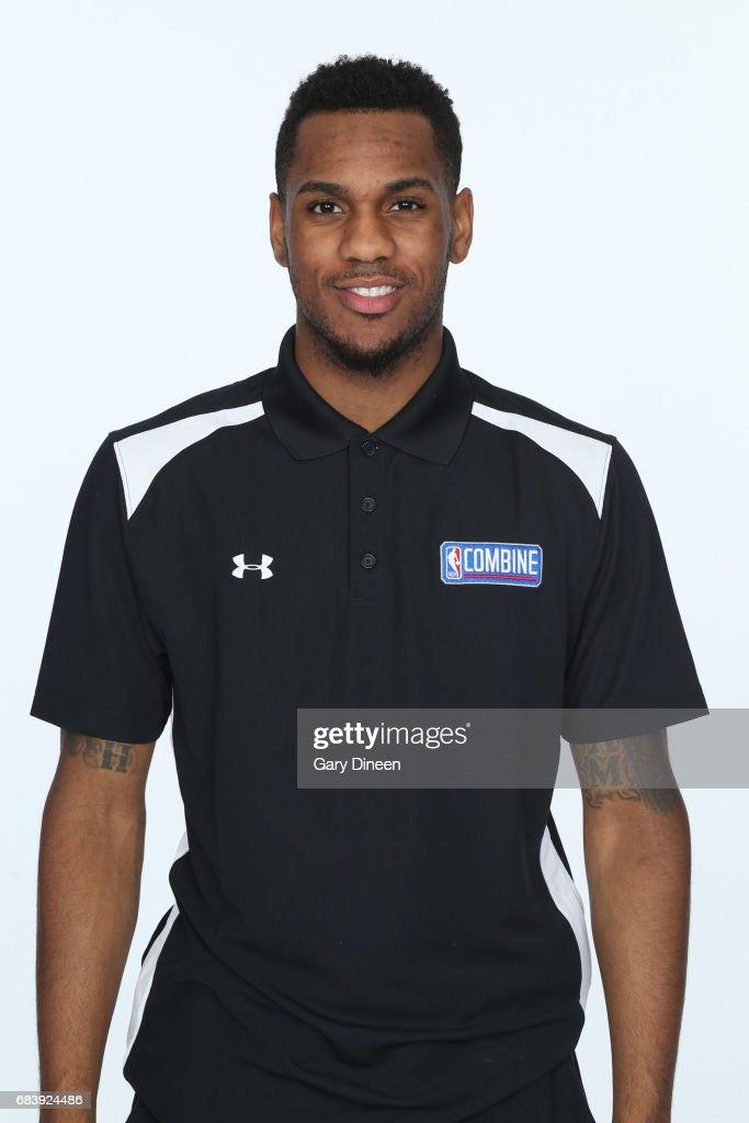NBA Draft Combine - Medical Testing