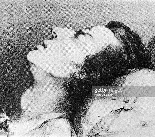A drawing by T Kwiatkowski of the Polish born composer and pianist Frederic Chopin on his deathbed from tuberculosis 1849