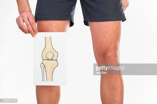 Dibujo de una articulación de la rodilla humana