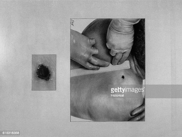 Drawing showing back entrance of wound of President John F Kennedy Included as an exhibit for the House Assassinations Committee formed in 1976 Ca...