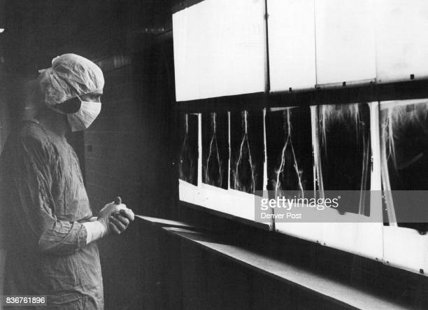 DrDavis Kumpe Examines XRays Taken at various stages of the procedure they show results of dilation of the artery Credit Denver Post