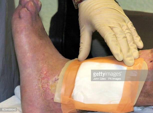Dressing containing live maggots is placed on a patient's leg at a walkin clinic A new NHSfunded threeyear trial by the University of York aims to...