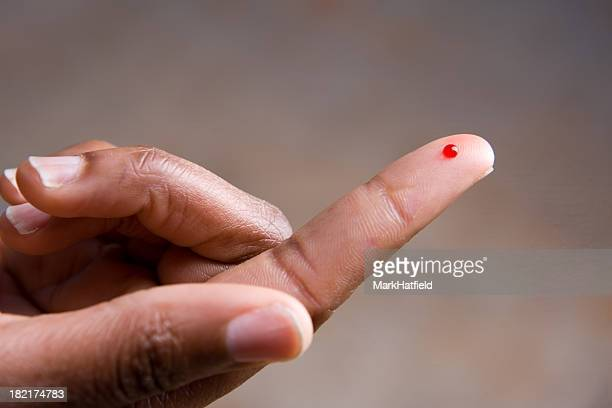 Drop of blood on fingertip for a medical exam