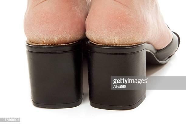Seca e Rachado solas de pés em sapatos em branco