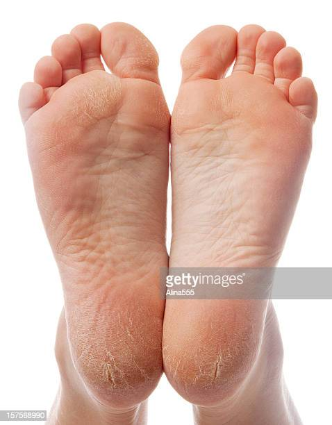 dry and cracked soles of feet on white background - female feet soles stock photos and pictures