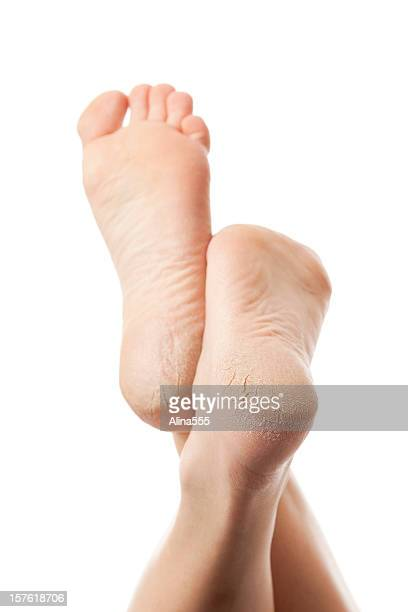 dry and cracked soles of feet on white background - human foot stock pictures, royalty-free photos & images