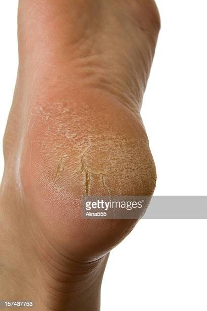 dry and cracked woman's heel on white background - human foot stock photos and pictures