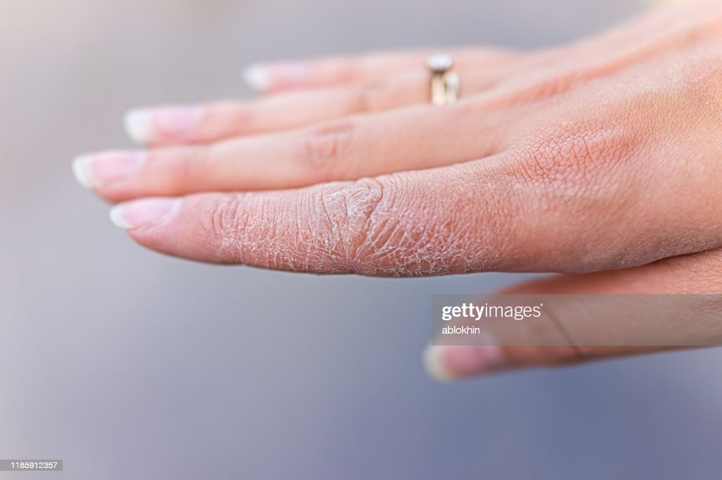 Dry cracked skin macro closeup of index finger of female young woman's hand showing eczema medical condition called dyshidrotic pompholyx or vesicular dyshidrosis : Stock Photo