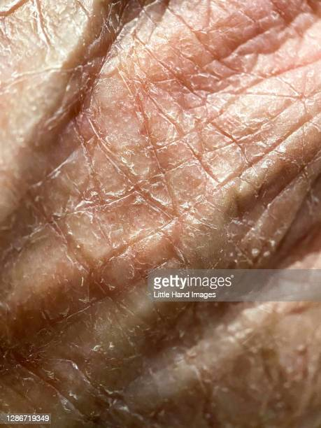 dry cracked skin - dry skin stock pictures, royalty-free photos & images