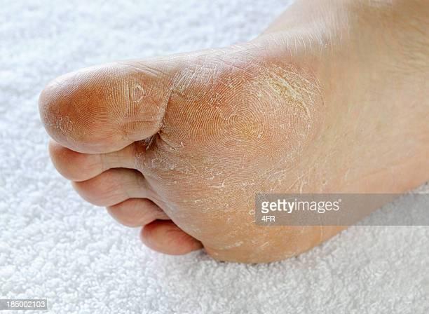 Dry rough foot (XXXL)