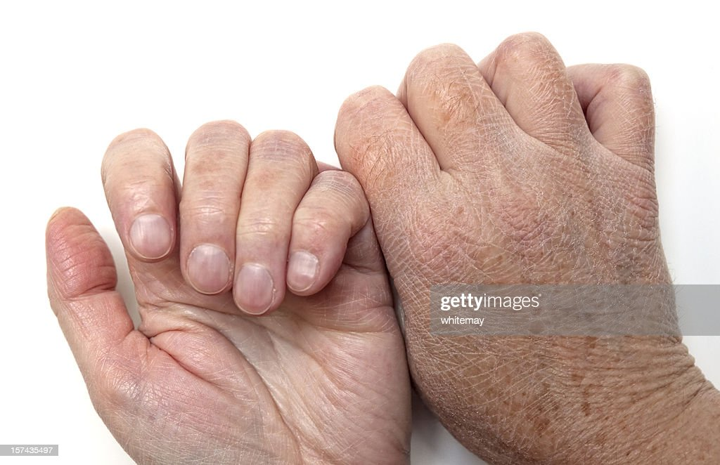 Dry skin on hands, back and front : Stock Photo