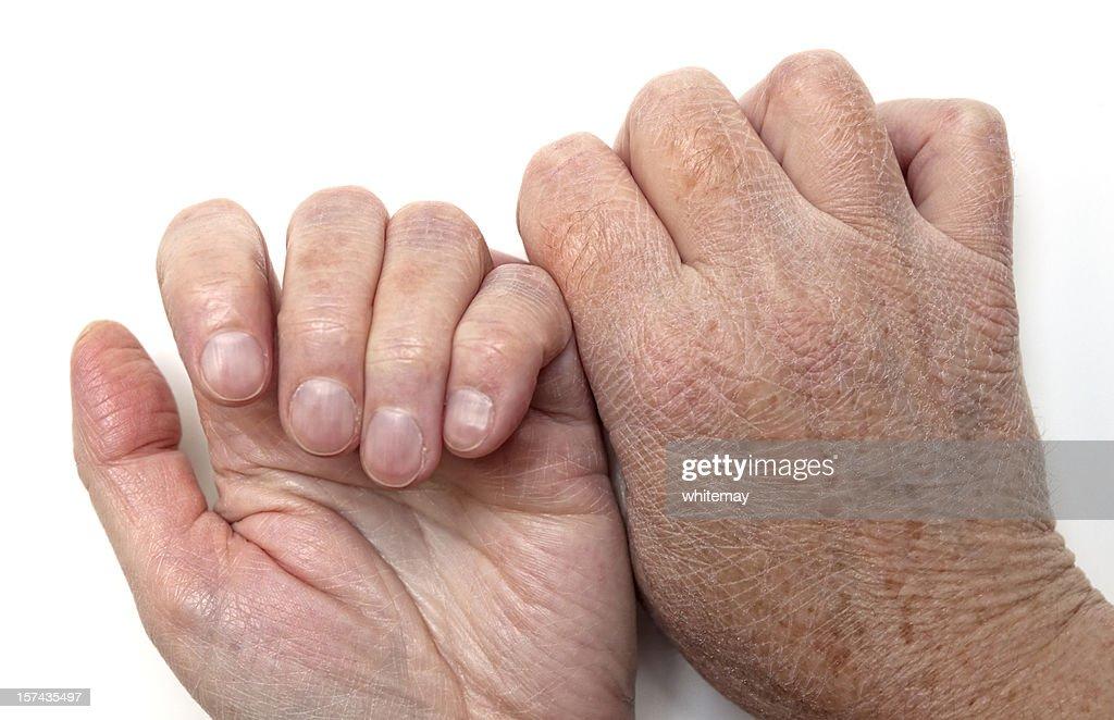 Лечение кожи рук при сахарном диабете
