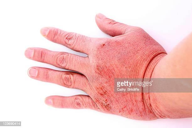 sequedad de la piel - dermatitis fotografías e imágenes de stock