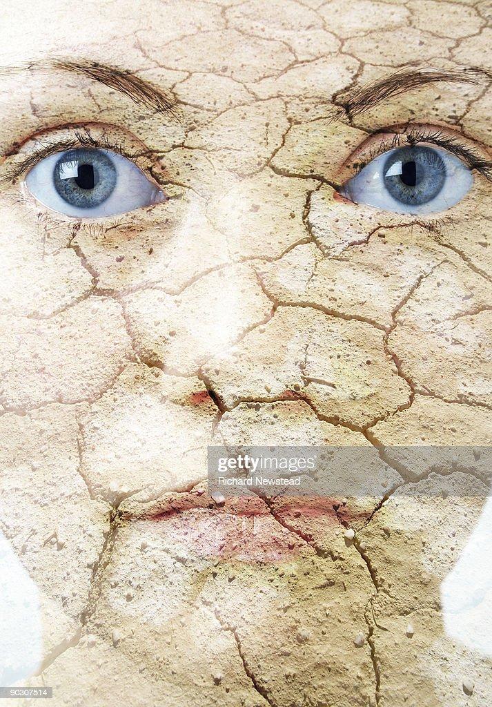 Dry Skin : Stock Photo