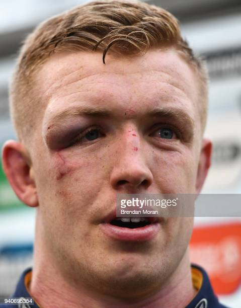 Dublin Ireland 1 April 2018 Dan Leavy of Leinster after the European Rugby Champions Cup quarterfinal match between Leinster and Saracens at the...