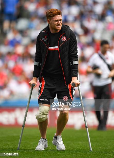 Dublin Ireland 12 August 2018 Injured Tyrone player Conor Meyler prior to the GAA Football AllIreland Senior Championship semifinal match between...