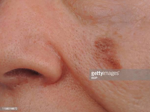 Dubreuilh melanoma of the cheek