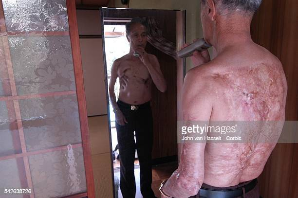 Due to thickened keloids on his back, Sumiteru Taniguchi still suffers from excruciating pains when he goes to bed. As a young man of 16, he was...