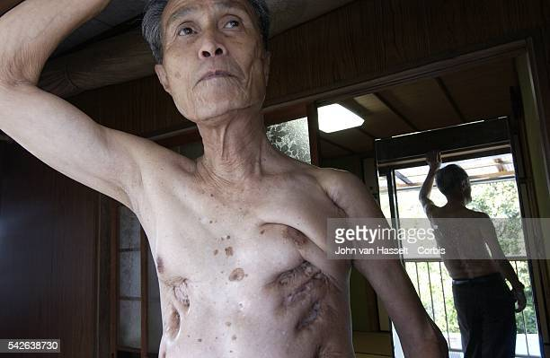 Due to thickened keloids on his back Sumiteru Taniguchi still suffers from excruciating pains when he goes to bed As a young man of 16 he was cycling...