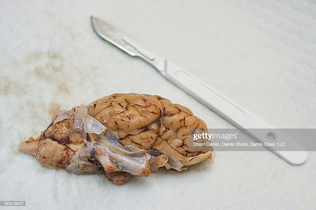 Dura mater (brain dissection) : Stock Photo