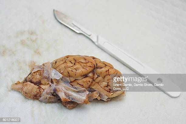 dura mater (brain dissection) - damlo does stock pictures, royalty-free photos & images
