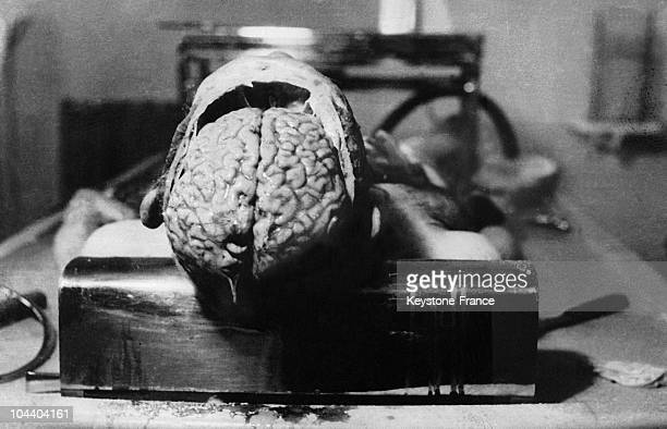 During the second world war in Dachau concentration camp in Germany this prisoner was subjected to experiments on his brain before he died He was...