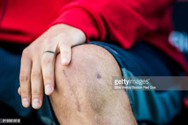 Dustin Pedroia of the Boston Red Sox holds his knee after a surgery while he meets with the media during a press conference during a team workout on...