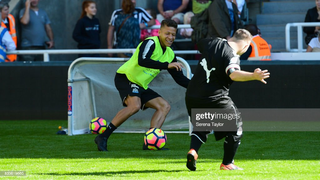 Dwight Gale of Newcastle United has a kick about with disabled footballers during a Newcastle United Open Training session at St.James' Park on August 17, 2017, in Newcastle upon Tyne, England.