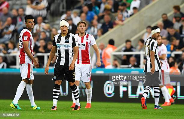 Dwight Gayle of Newcastle United and Ayoze Perez of Newcastle United both wear head straps following injuries during the EFL Cup second round match...