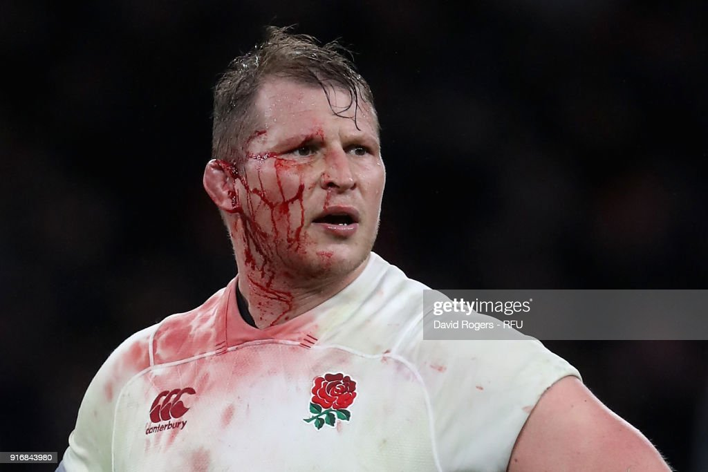 Dylan Hartley, the England captain, is covered in blood after injurying his ear during the NatWest Six Nations match between England and Wales at Twickenham Stadium on February 10, 2018 in London, England.