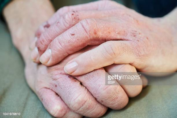 Dyshidrosis also known as acute vesiculobullous hand eczema is an irritation of the hands or feet characterized by blisters on the skin