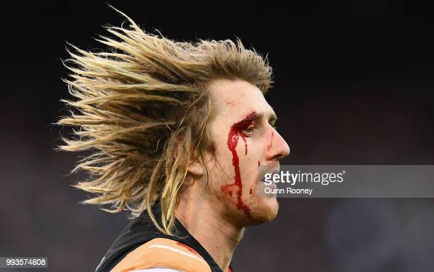 Dyson Heppell of the Bombers comes from the ground with a cut eye during the round 16 AFL match between the Essendon Bombers and the Collingwood...