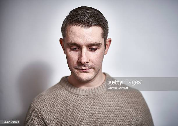 Early 30's British male with a sad expression.