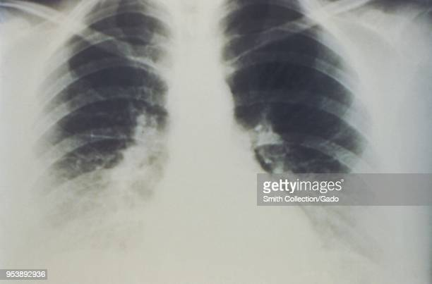 Early stages of bilateral pulmonary effusion due to Hantavirus pulmonary syndrome revealed in the AP chest xray 1994 Image courtesy Centers for...