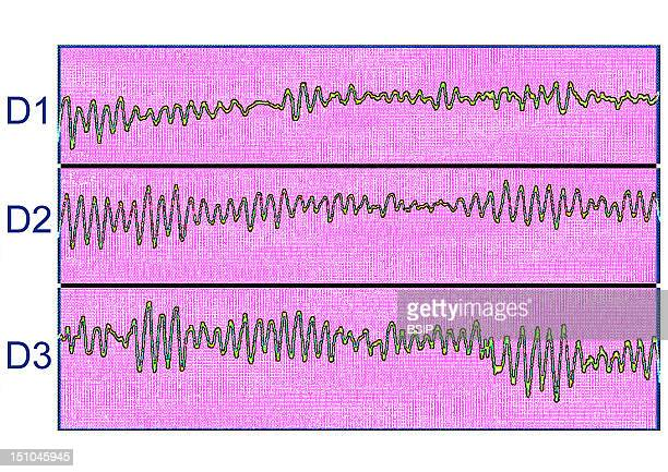 Ecg Of A Ventricular Fibrillation Sort Of Heart Attack By Contractions Disorganized Thrills Of The Cardiac Ventricles.