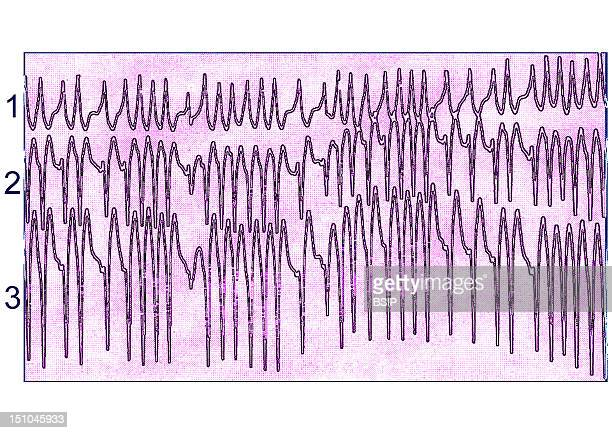 Ecg Of An Auricular Fibrillation Causes Are Myocardial Infarction Angina High Blood Pressure And Mitral Valvulopathies