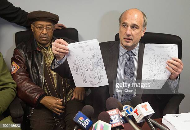 Ed Fox the lawyer for the family of Philip Coleman and Coleman's father Percy display copies of autopsy records which show the number of injuries on...