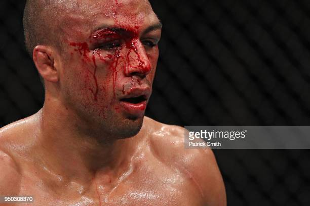 Edson Barboza looks on bloodied against Kevin Lee in their lightweight fight during the UFC Fight Night event at the Boardwalk Hall on April 21 2018...