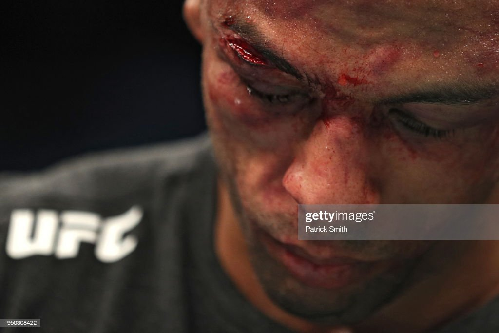 Edson Barboza looks on bloodied against Kevin Lee in their lightweight fight during the UFC Fight Night event at the Boardwalk Hall on April 21, 2018 in Atlantic City, New Jersey.