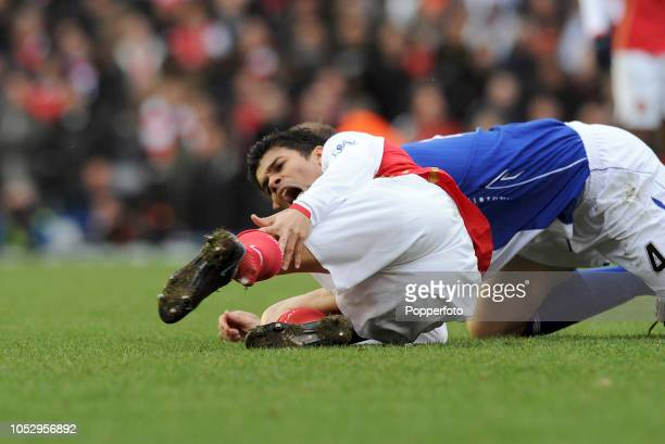 Eduardo da Silva of Arsenal has a broken ankle after being tackled by Martin Taylor of Birmingham City during the Barclays Premier League match...