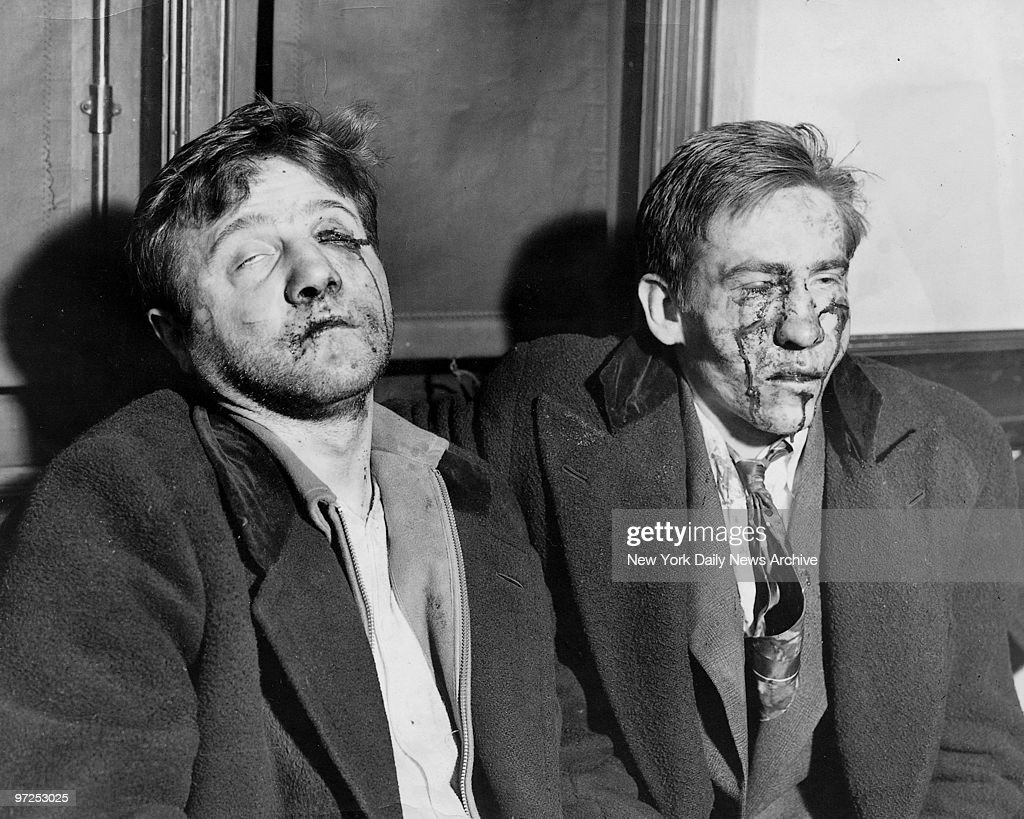 Edward Metelski, who murdered a policeman, and Paul Semenkewitz sit bruised and bleeding after they escaped from Middlesex County Jail and were captured by police.