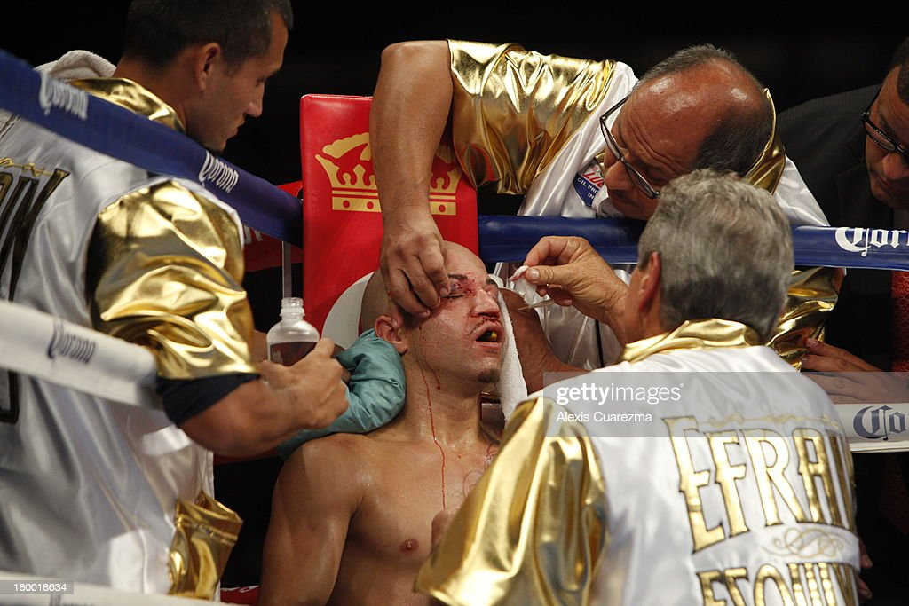 Efrain Esquivias corner works on his cuts in between rounds during his fight with Rafael Marquez as the main co-event at the Fantasy Springs Resort Casino - Special Events Center on September 7, 2013 in Indio, California.
